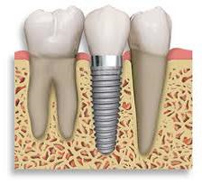 Dental implants resized 600