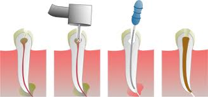 endodontist independence mo