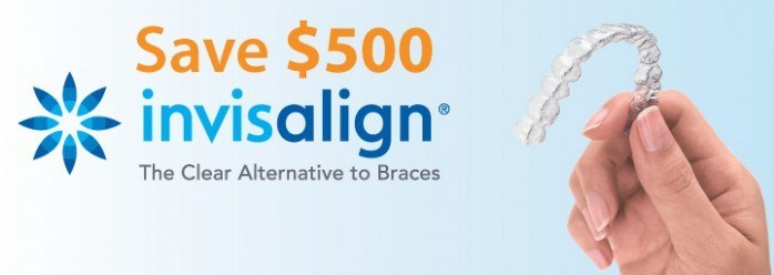 500-off-invisalign-thomas-l-anderson-dds-and-associates