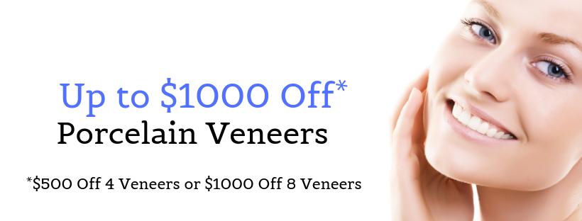 1000-off-porcelain-veneers