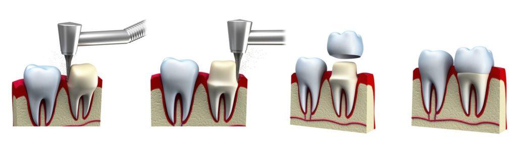 dental-crown-procedure