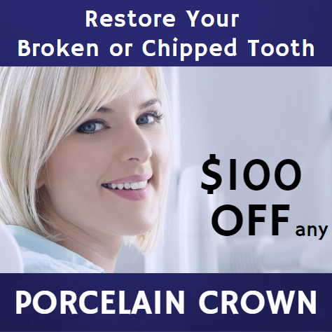 porcelain-crown