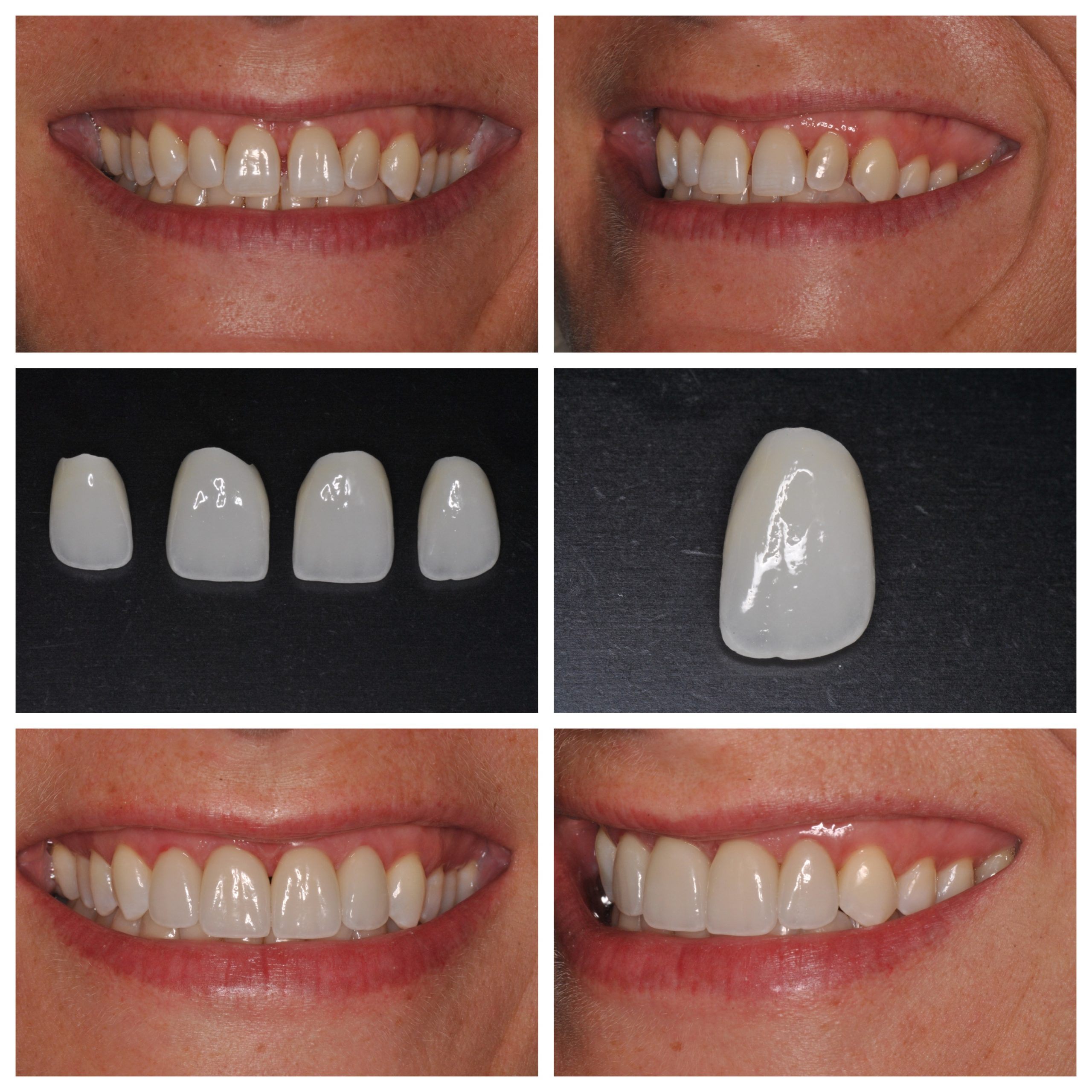 Smile Spotlight: Amy  Love Your Smile with Porcelain Veneers
