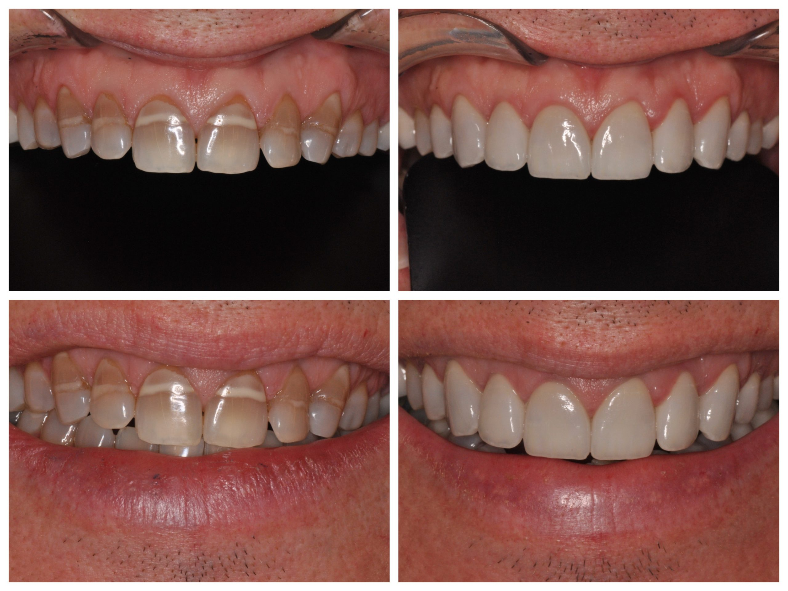 Smile Spotlight David Transform Tetracycline Stains On Teeth