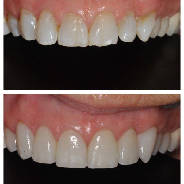 dental-crown-makeover