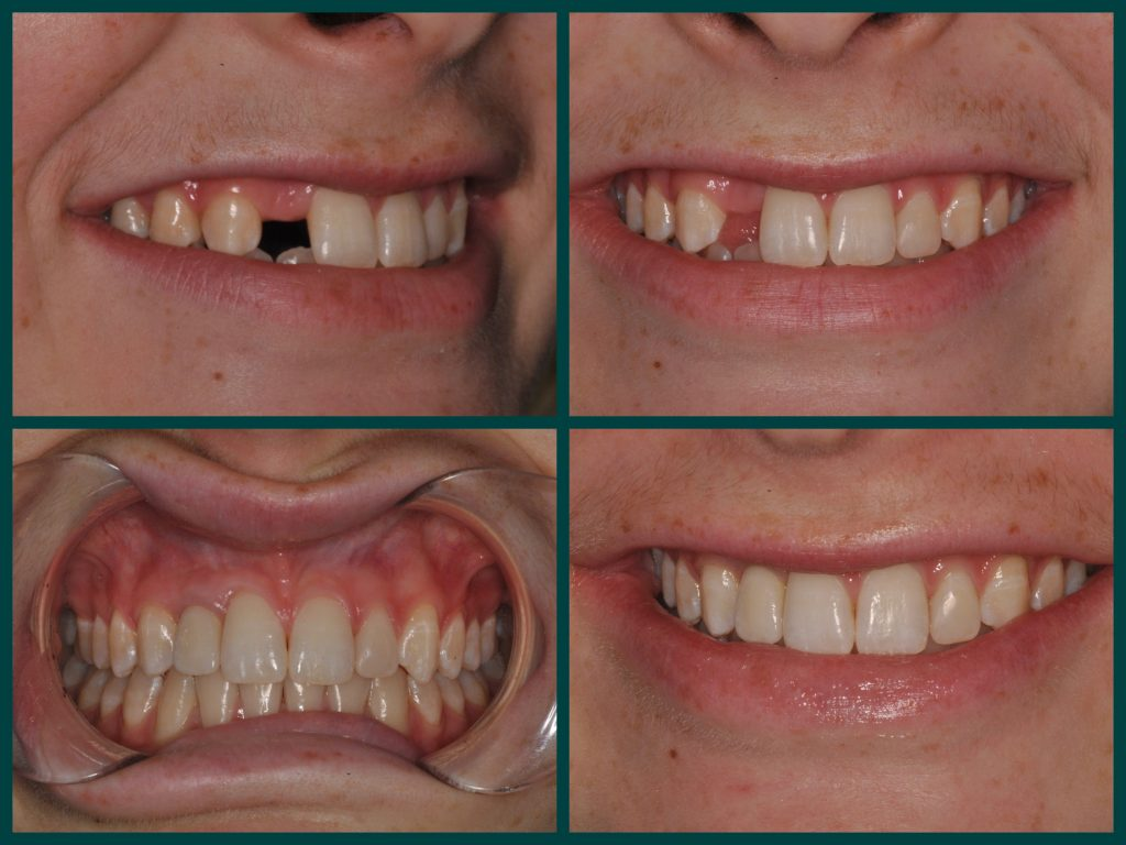 restore-missing-tooth